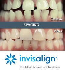 Seabright Family and Implant Dentistry | Invisalign | Spacing