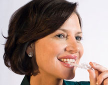 Sea Bright Family and Implant Dentistry | Invisalign Frequently Asked Questions